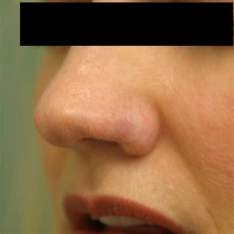 nose cancer nasal cancer 4