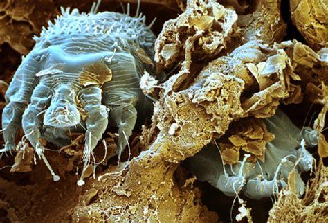 do bed bugs stay on your skin 虫刺されビフォア アフター この虫に刺されるとこんな風になるんだぜ カラパイア