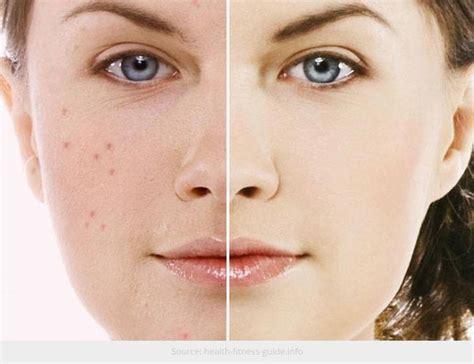 Cm Acne 1 dermatologue acn 233 thionville 3eme
