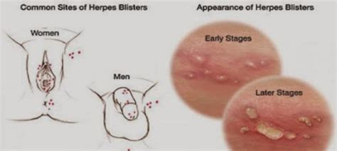 Obat Herpes Simplex Genitalis harga obat herbal penyakit herpes obat herbal de