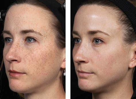 3x Laser Rejuvenation Treatment fraxel dual skin resurfacing laser treatment manhattan