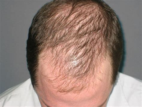 best haircuts for alopecia all about androgenetic alopecia his hair clinic