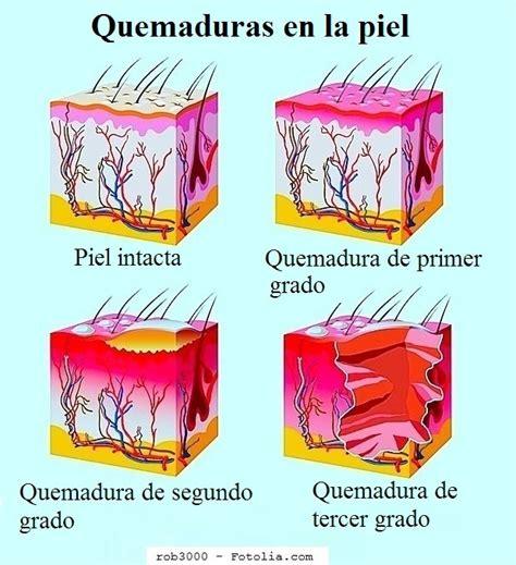 imagenes reales de quemaduras de primer grado quemaduras qu 233 hacer remedios caseros pomadas