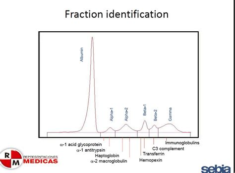 proteinograma o que especialistarepremed electroforesis de proteinas