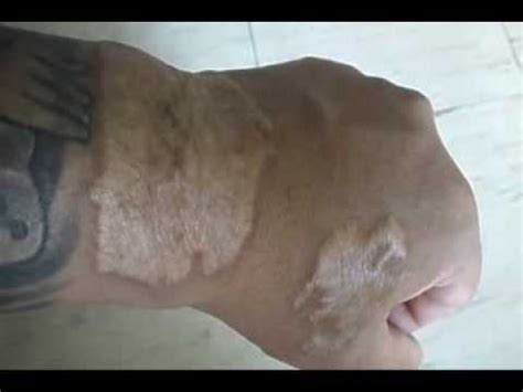 tattoo removal scarring laser removal results updated scars 2014