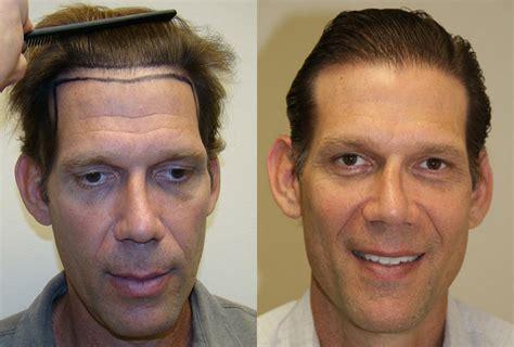 rolando model hair transplant testimonials reviews about josh engoren testimonials reviews about dr brett bolton