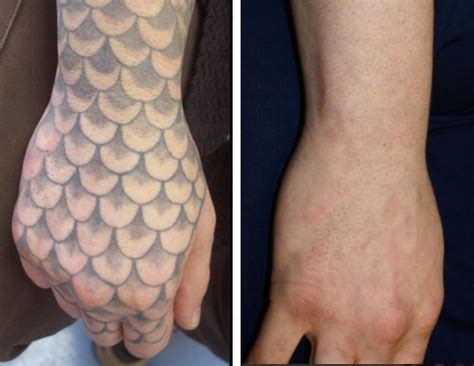hand tattoo removal before and after hand tattoo removal danielhuscroft com