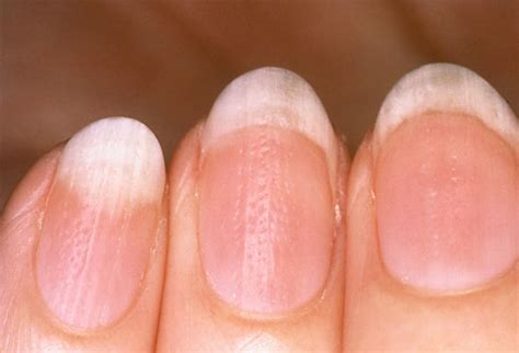 White Nail Beds by How To Get Rid Of White Spots On Nails