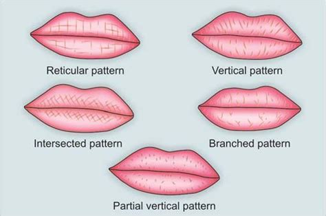 lip pattern types cheiloscopy a deterministic aid for forensicsex