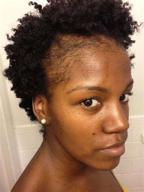 Natural Hair Styles To Hide Balding Edges | natural hair thinning edges how to grow edges and bald