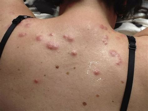 bed bug allergic reaction allergic reaction to bed bug bites pictures 28 images