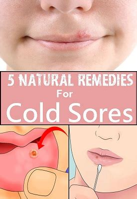 top 5 remedies for cold sores styles of living