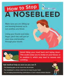 how to stop a nose bleed infographic
