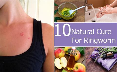 Natural Cure for Ringworm   How To Cure Ringworm Naturally