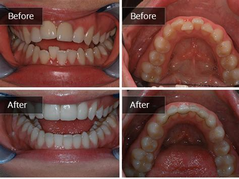 teeth straightening gallery edinburgh cosmetic dentist