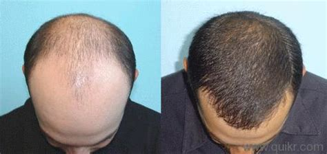 can you get sisterlocks with bald spots 15 home remedies to get rid of baldness hair loss