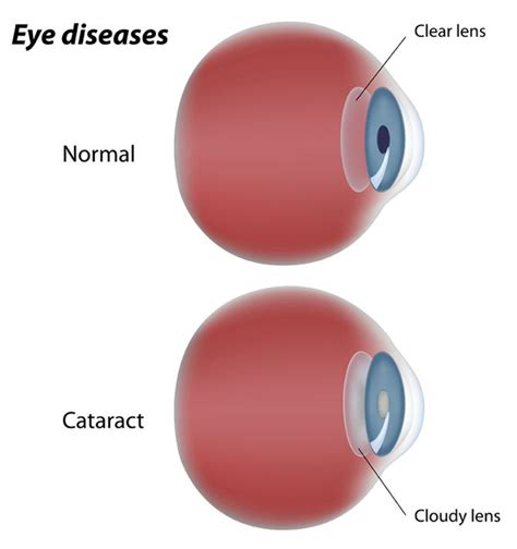 cataract treatment image gallery looking through cataract
