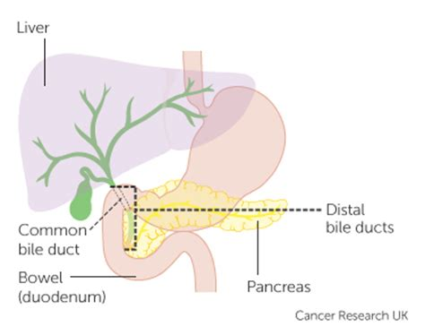 whipple procedure diagram cancer pancreas diagram cancer free engine image for