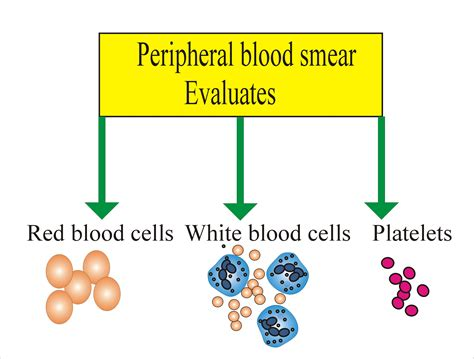 high white blood cell count in dogs peripheral blood smear report sle trypanosomiasis in a bakerwali a report