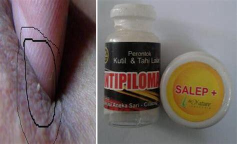 Obat Kutil Callusol bentuk kutil yang menular hpv liangyoubook
