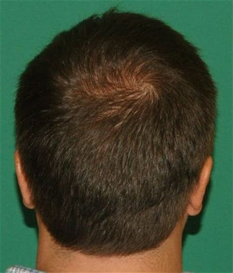hair cuts for balding crown problem 3000 graft crown restoration hair loss surgery before