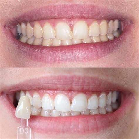 delighted enlighten teeth whitening client