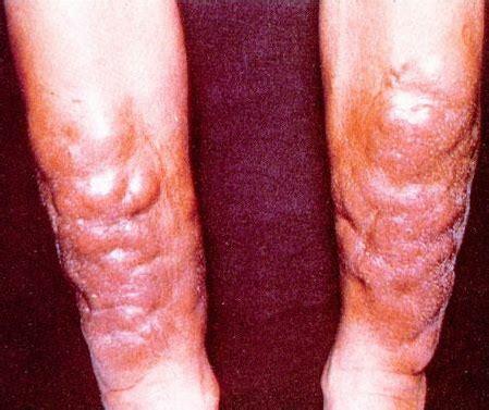 pretibial swelling