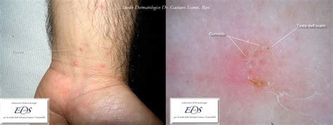 sintomi condilomi interni scabbia umana dr gaetano scanni