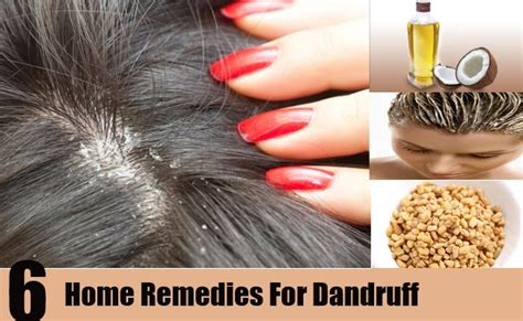 6 home remedies for dandruff home and herbal remedies