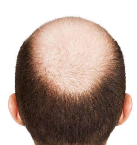 male pattern hair loss testosterone image gallery male baldness