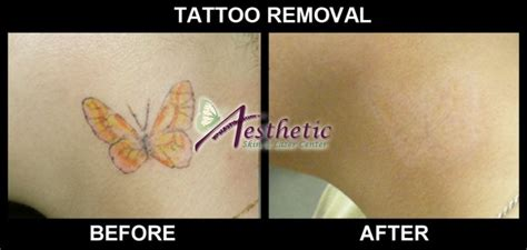 tattoo removal pittsburgh laser removal before after aesthetic skin