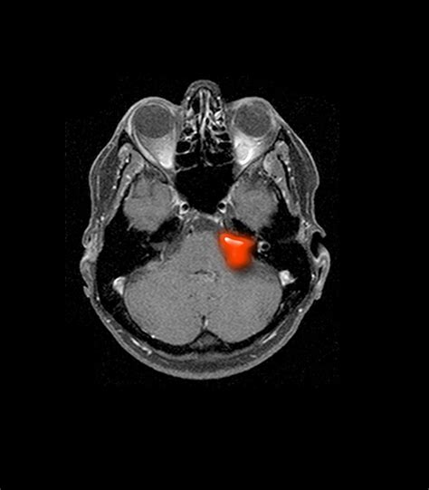 best acoustic neuroma surgeons acoustic neuroma neurosurgery and endovascular associates