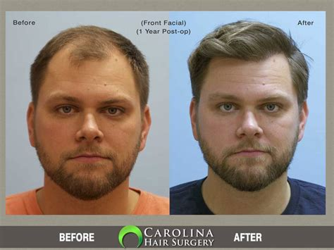 before and after photos of hair transplant surgery with an hair transplant before after photos