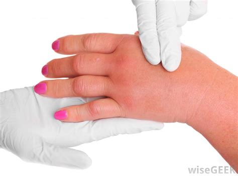 s swollen what are the most common causes of swelling
