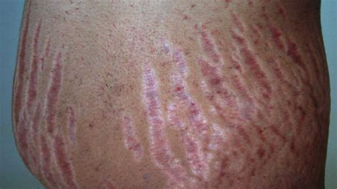 Stretch Marks by Stretch Marks Causes Diagnosis And Treatments