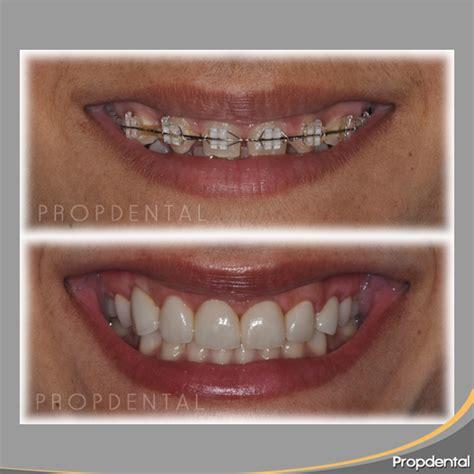 precios de fundas dentales precio de las coronas dentales
