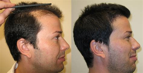 hair transplant before and after noam testimonials reviews about dr brett bolton