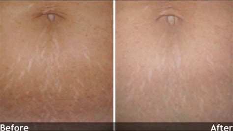 Mederma Stretch Marks Therapy mederma before and after mederma stretch marks therapy