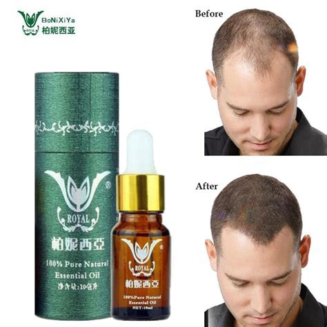 styling gel cause hair loss hair growth essence professional salon hairstyles keratin