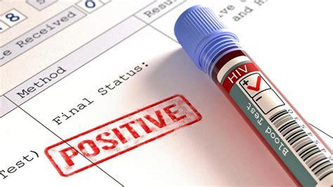 wann wird hiv zu aids aids diagnose hiv wird in vielen f 228 llen zu sp 228 t entdeckt