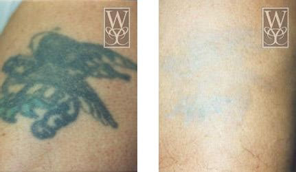 tattoo removal gallery williamson cosmetic center