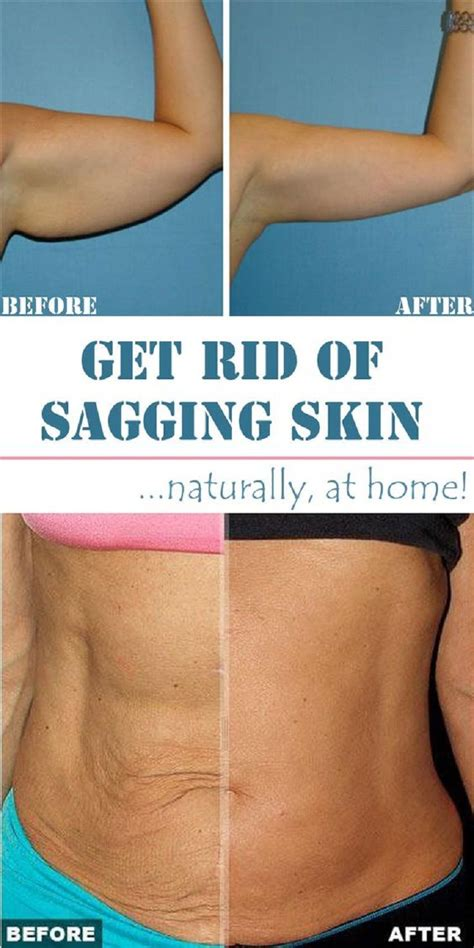 best 25 skin tightening ideas on