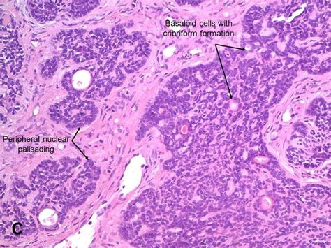 histologic pattern analysis of basal cell carcinoma american urological association basal cell carcinoma