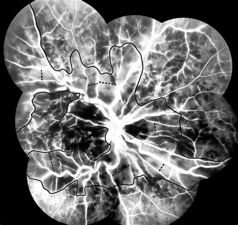mosaic vascular pattern pattern of vascular nonperfusion in retinal venous