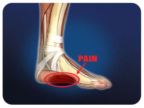 dolore al tallone parte interna how to overcome plantar fasciitis laces and lattes