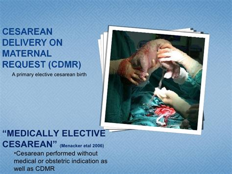 Cesarean Delivery On Maternal Request