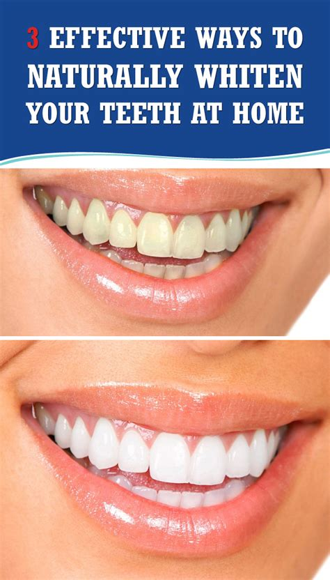 3 effective ways to naturally whiten your teeth at home