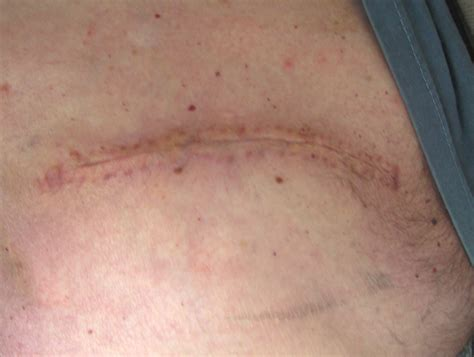 how long do dissolvable stitches last after c section skin cancer round 1 finale dexgodbey s blog