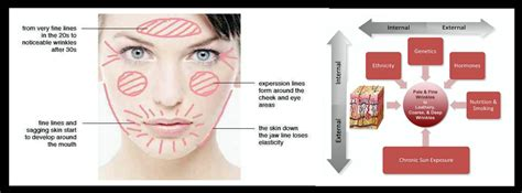 Laptops The New Cause Of Skin Aging by Fillers Dr Kpodzo Plastic Surgeon
