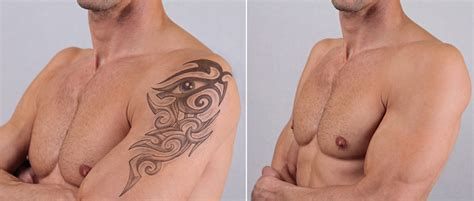 tattoo removal procedure laser removal proves best solution for